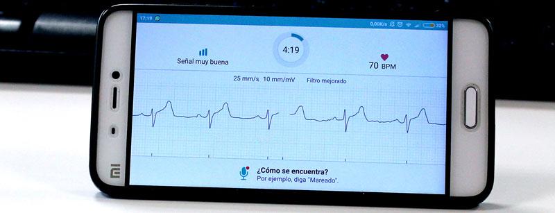Investigadores del CiTIUS ganan el desafío internacional de computación en cardiología clínica