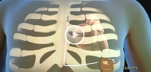 Implantan por primera vez en España un desfibrilador subcutáneo para tratar arritmias cardíacas graves