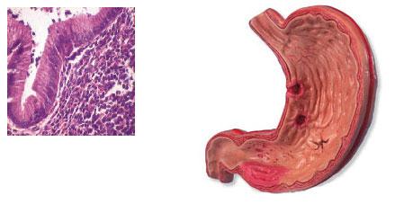 Reproducen las características de un linfoma humano en un ratón