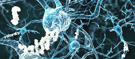 Un estudio muestra como el Alzheimer mata las células del cerebro