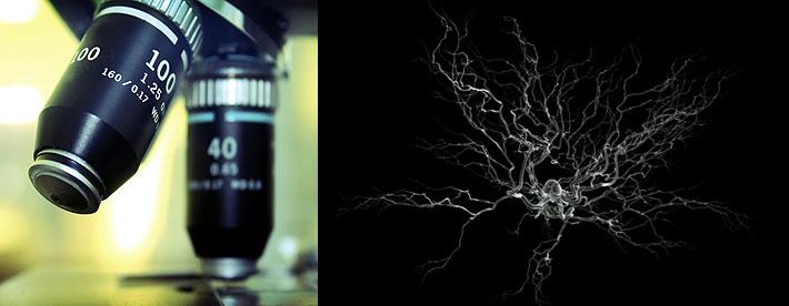 Proteína β-amiloide. Detección precoz del alzhéimer antes de que aparezcan sus síntomas