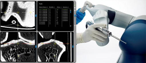 Primera operación de rodilla en España usando un brazo robótico