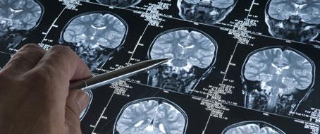 Avances en la búsqueda de una posible vacuna contra el alzhéimer