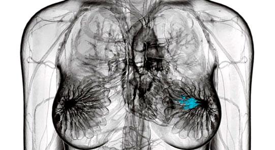 Nuevo técnica de realización de tomografías computarizadas con menor radiación